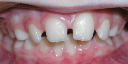 Diastema - spacing between teeth