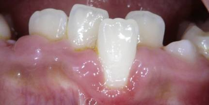 Gingival-Recession-2