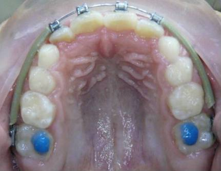 Intercep-Anterior-Cross-Bite3