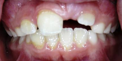 Impacted-Perm-Tooth-1
