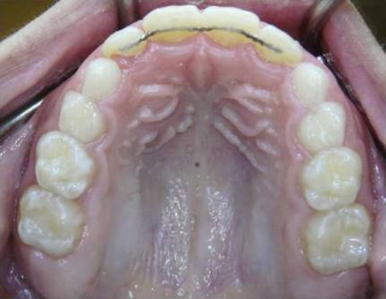 Intercep-Anterior-Cross-Bite5