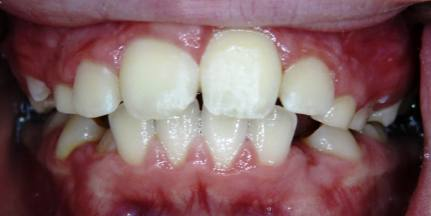Impacted-Perm-Tooth-4