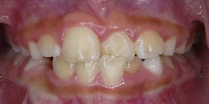 Intercep-Anterior-Cross-Bite1