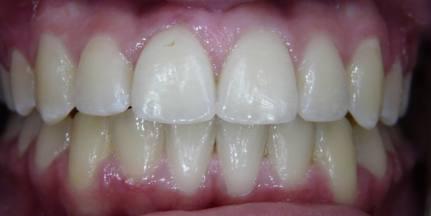 Extra-Teeth-4