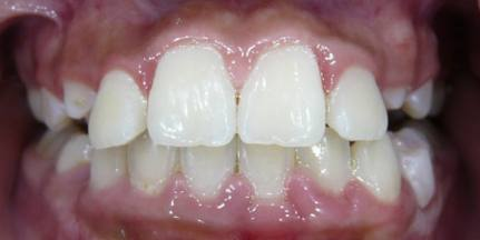 Gingival-Recession-3
