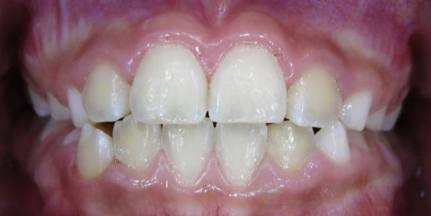 Intercep-Anterior-Cross-Bite4