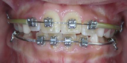 Intercep-Anterior-Cross-Bite2