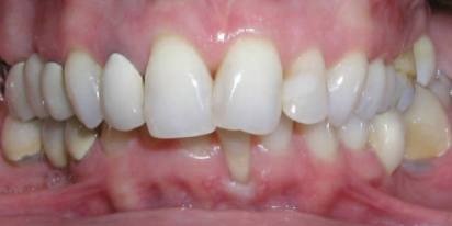 07-periodontal-problems