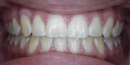 Impacted-Teeth-5