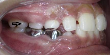 Early-Loss-of-Baby-Molar-1