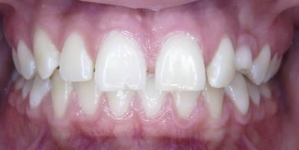 Impacted-Teeth-1