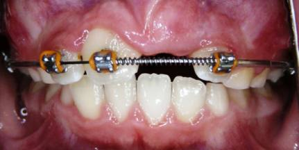 Impacted-Perm-Tooth-3