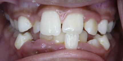 Gingival-Recession-1