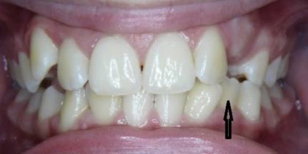 Extra-Teeth-1